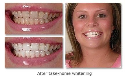 Before and after take-home whitening!