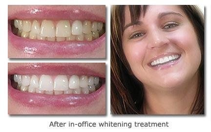 Before and After in-office whitening treatment!