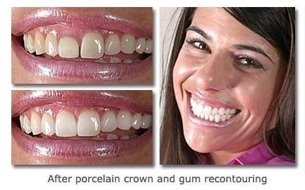 Porcelain crown and gum recontouring!