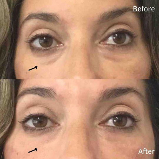 Before and after under-eye filler