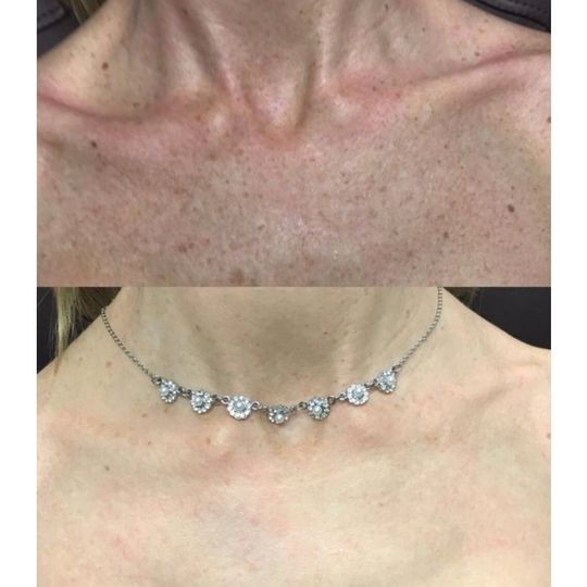 Before and after BBL treatment