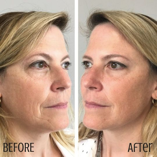 Before and after filler + botox
