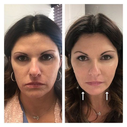 Before and after profound RF treatment