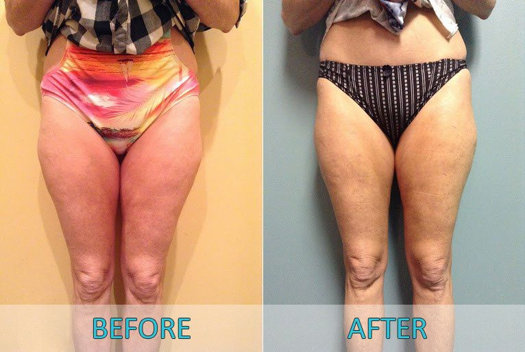 Womans lower body before and after