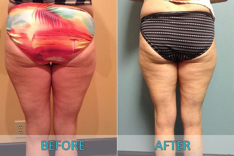 Womans lower body before & after