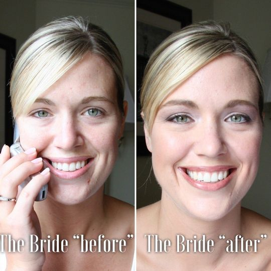 Bride-Before and After