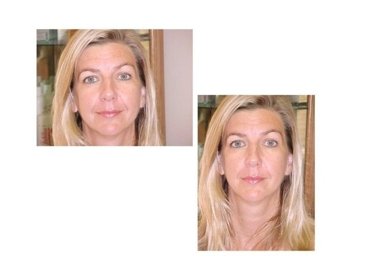 linda before after 7 10