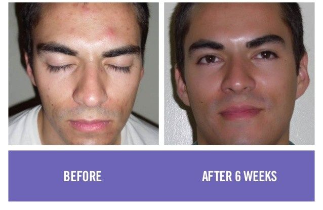 6 weeks of skincare