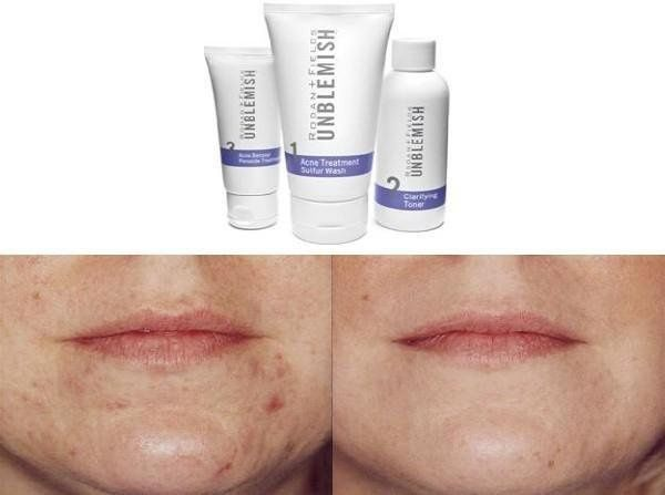 Before and after with the Unblemish line