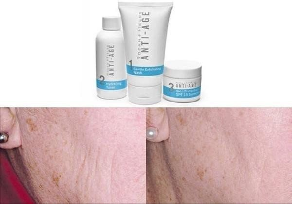 Before and after with the anti-aging line.