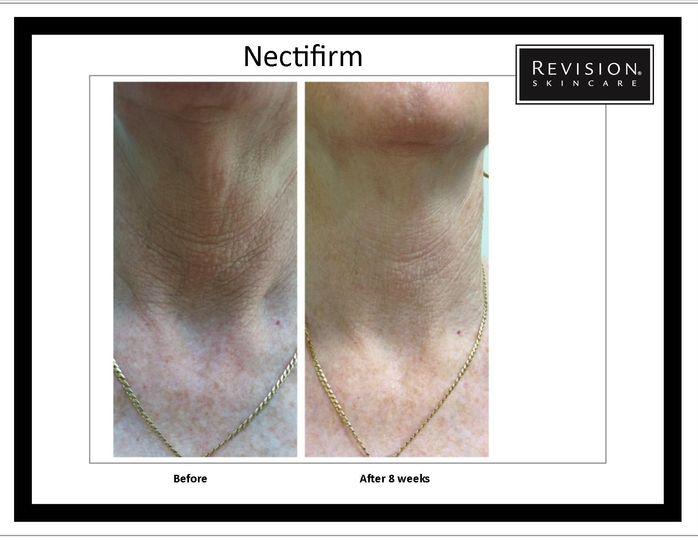 necktifirm phot