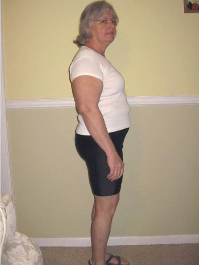 BEFORE - My Mother-in-Law, Ruth in October 2011