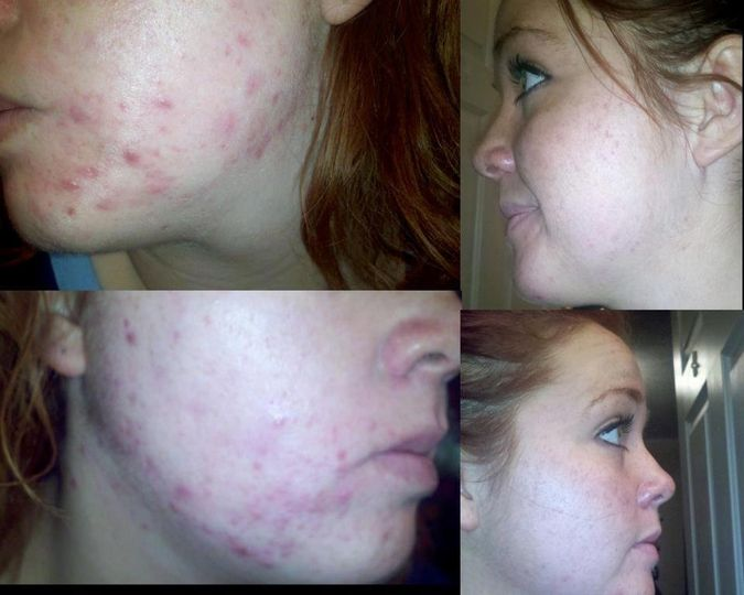 Beforeafteracne