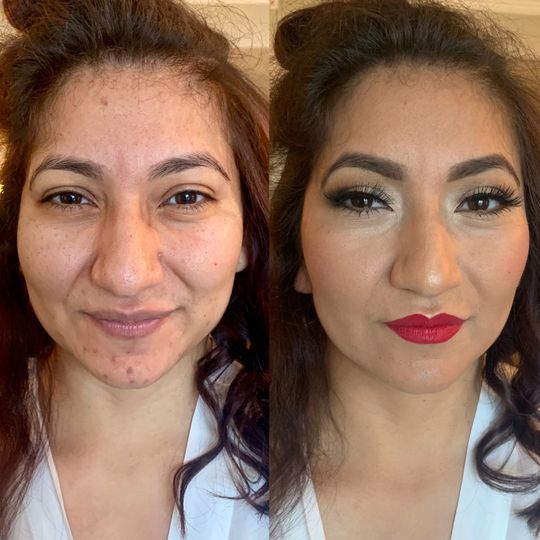 Before and After (Bride)