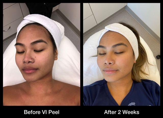 Tmx Vi Peel Mona Before And After Pics 51 1949309 161048881896516 Alpharetta, GA wedding beauty
