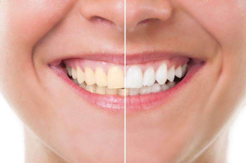Teeth whitening natick ma