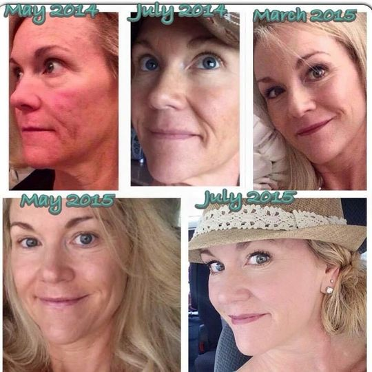 From irritated red, scarred, and aging skin to a youthful, creamy toned, firm, and beautiful happy...