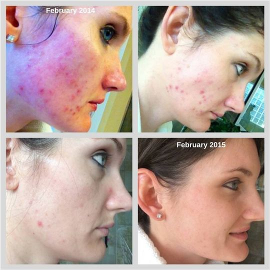 Severe acne to a fresh clean creamy smooth face!