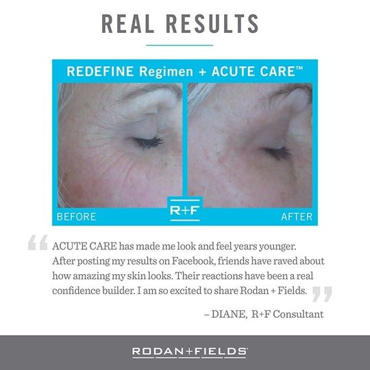 before and after acute care copy