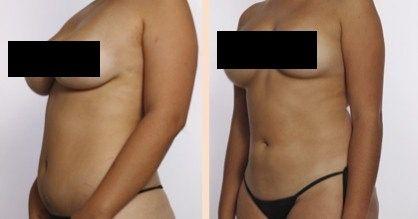 Cryo lipo and breast lift