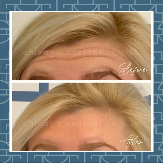 Botox®  for forehead wrinkles