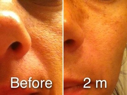 My own personal results after using NeriumAD night cream.  Pores are smaller, skin texture is soft...