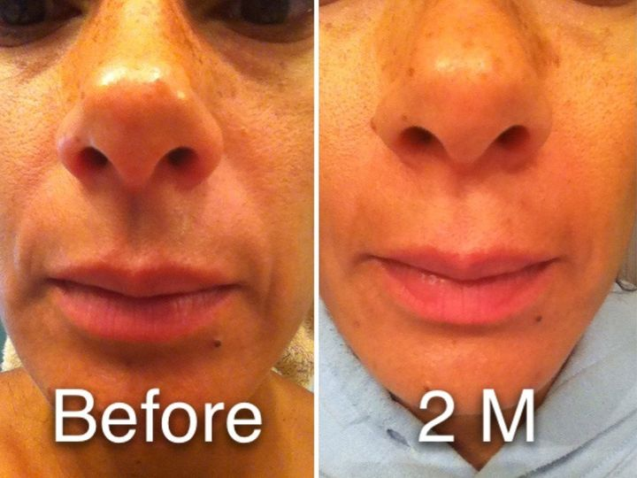 My own personal results after 2 months using NeriumAD day and night creams.  Laugh lines are less...