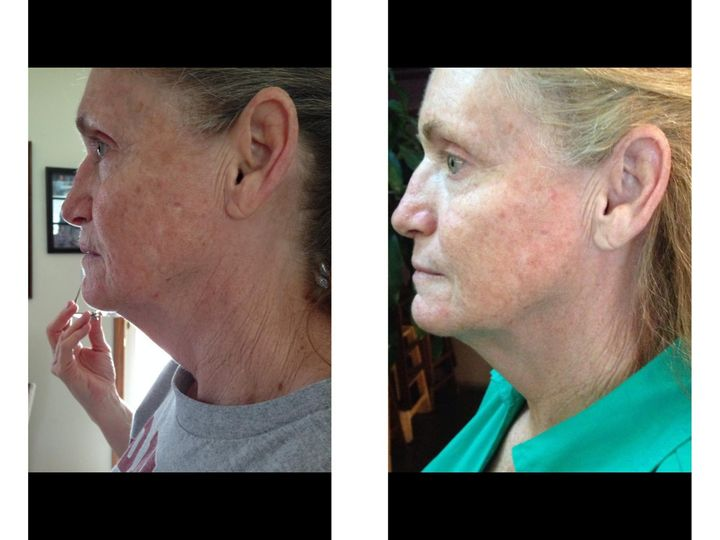Customer results after 90 days.  Scars and discoloration improved. Skin texture is softer and...