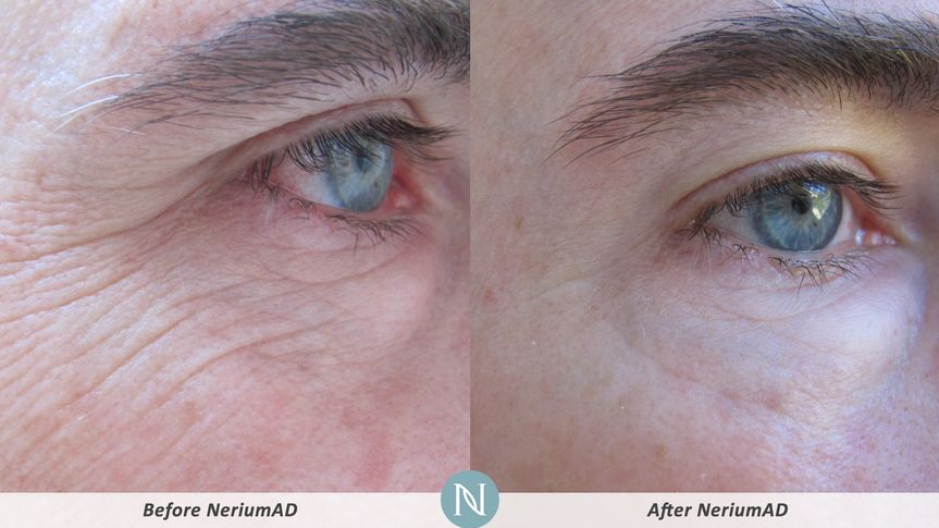 Male client had reduced appearance of crows feet lines and wrinkles.  Improved skin tone and...