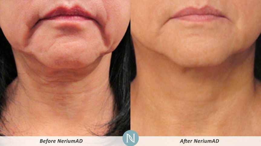 Client after 90 days using NeriumAD day and night creams on neck.  Loose skin improved with...