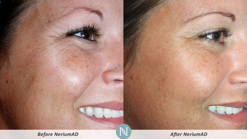 Client had improved tone and texture.  Discoloration decreased and sunspots less visible.