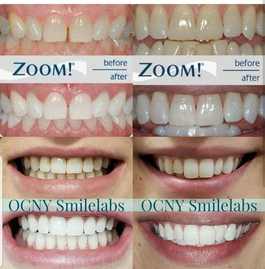 Zoom vs Smilelabs