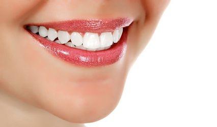OCNY Smile Labs 1