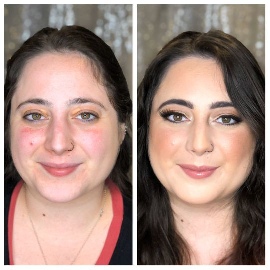 Before/after trial