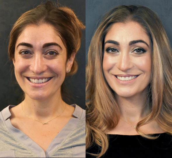 Before and after bridal trial