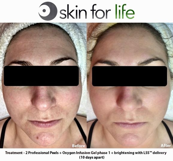 Chemical Peel & Oxygen Infusio
