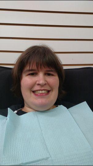 Brooke before teeth whitening.