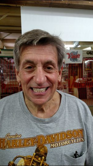 John before his teeth whitening