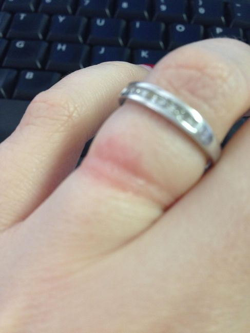 Ring Rash Weddings Etiquette And Advice Wedding Forums