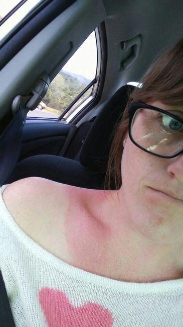 Sunburn Before Wedding Help Weddings Wedding Attire Wedding