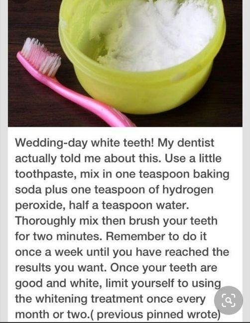 Teeth whitening - 1