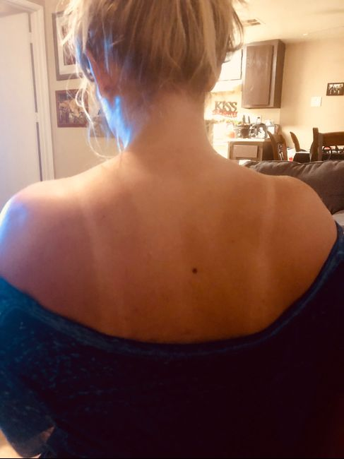 Help!! Tan lines a month before wedding!! 1