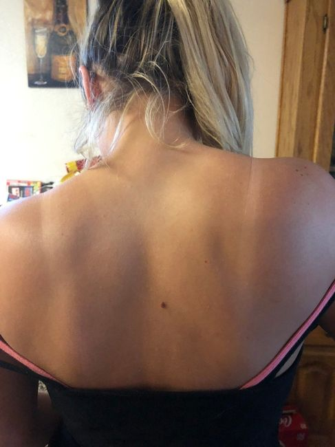 Help!! Tan lines a month before wedding!! 3
