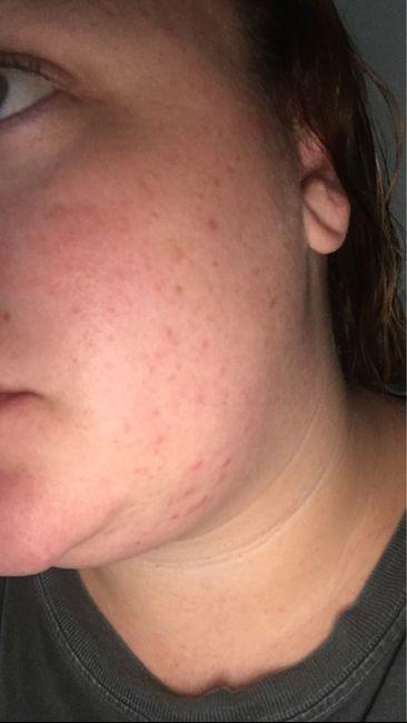 Skin Help Please! 2