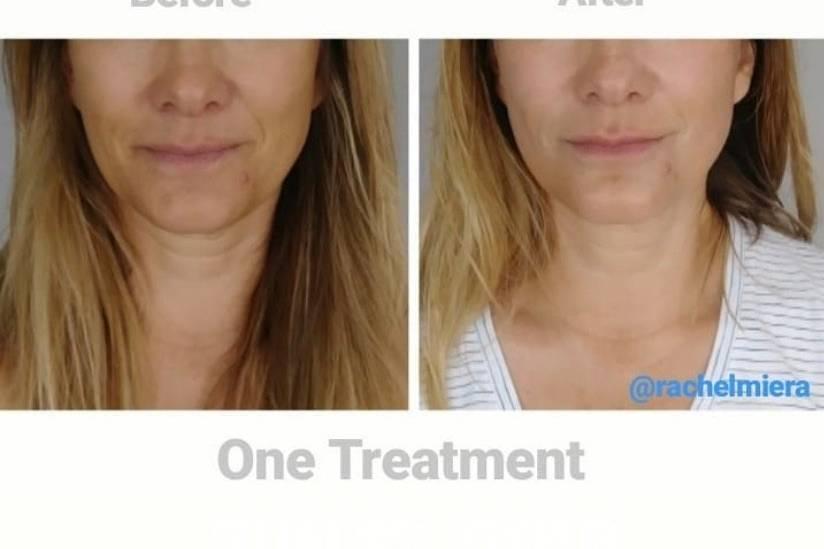 Facial lifting treatment