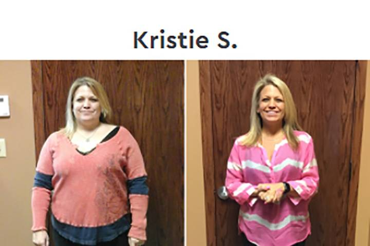 Kristie Before & After