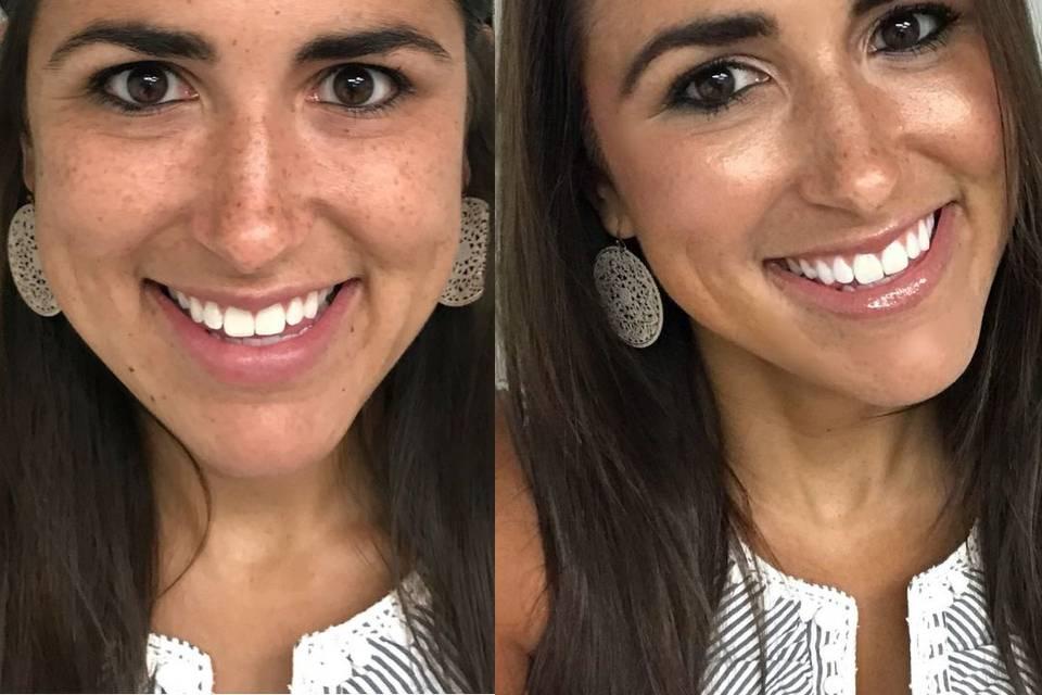 Before and after skin care regimen