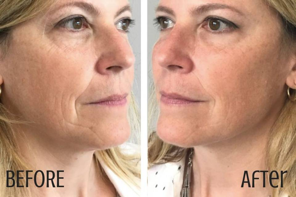 Before and after filler and botox