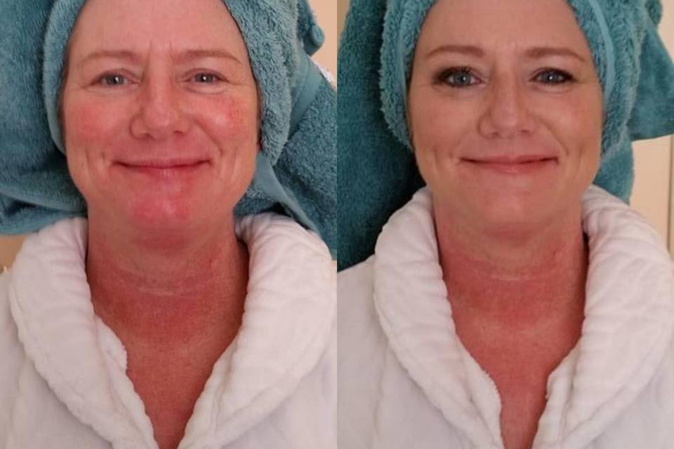Before and after mother of