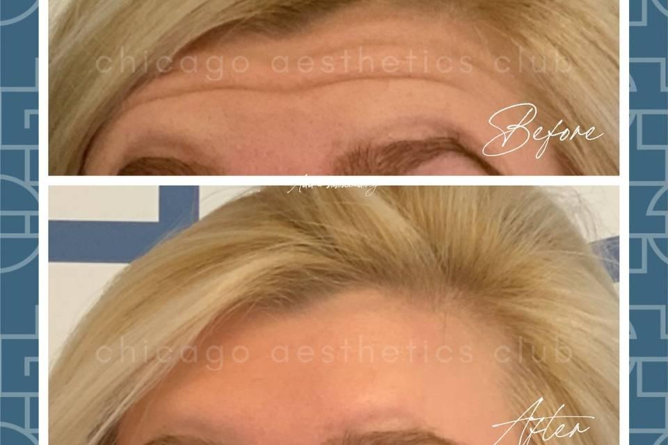 Botox®  for forehead wrinkles